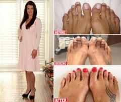 """Operatia Cenusareasa"", o chirurgie estetica a picioarelor"