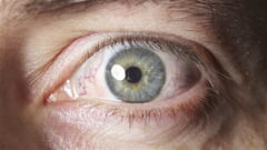 10 simptome infricosatoare, dar care sunt, de fapt, inofensive