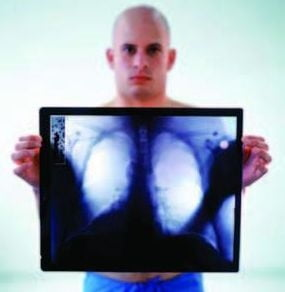24 martie, Ziua Mondiala anti-tuberculoza