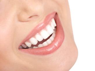 5 lucruri pe care ar trebui sa le stii inainte sa iti albesti dintii