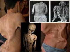 6 afectiuni medicale bizare (Galerie foto)