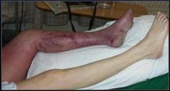 ALARMANT! 41.000 de romani, spitalizati din cauza trombozei venoase