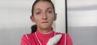 APEL: Oana are nevoie de 10.000 de euro! Sufera de o maladie rara care ii macina pielea si oasele