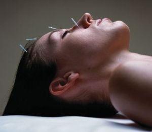 Acupunctura te vindeca de frica de dentist