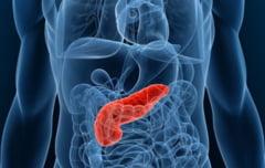 Afla totul despre cancerul de pancreas: cum poate fi depistat si cum trebuie operat