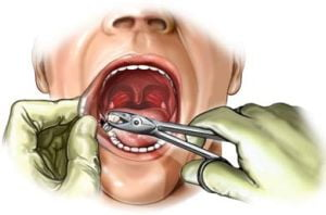Ai suferit un atac cerebral? Scoate-ti un dinte!