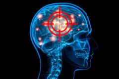 """Alarmă în rândul oamenilor de știință: """"Opriți firmele Big Tech să controleze mintea oamenilor cu cipuri implantate"""" VIDEO"""