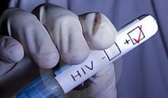 Alerta HIV! Echipa de epidemiologi a DSP Dolj, trimisa la Segarcea