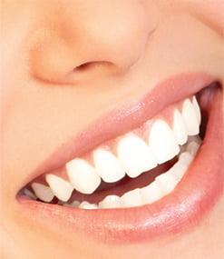 Alimente recomandate pentru dinti sanatosi