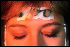 Alunga migrenele fara medicamente!