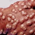 Anthony Fauci, despre eradicarea variolei: Ar fi fost imposibilă cu dezinformarea actuală