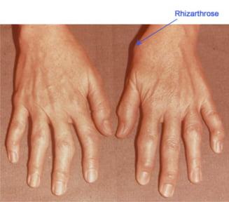 Artroza degetului mare - simptome si tratament
