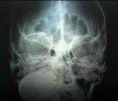Barbat operat pentru a i se scoate o grenada din cap