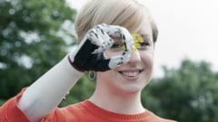 Bebionic, proteza care ofera o noua tehnologie in protezarea membrului superior