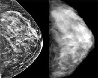 Cancerul ameninta femeile din cauza unei analize?