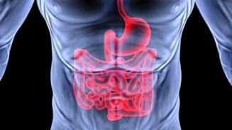 Cancerul la colon, prevenit cu ajutorul aspirinei - vezi in ce conditii