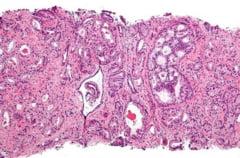 Cancerul la prostata, tratat cu un medicament contra SIDA