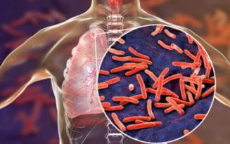 Caravana de testari gratuite pentru depistarea tuberculozei ajunge in Baragan