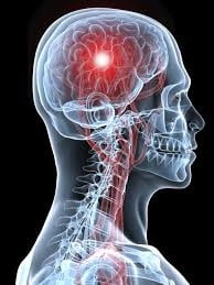 Cauze ale accidentului vascular cerebral - cum poti sa reduci riscul