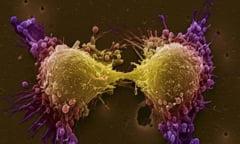 Ce alimente te pazesc de cancerul de prostata