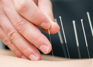 Ce boli pot fi tratate prin acupunctura - Doza de sanatate Ziare.com