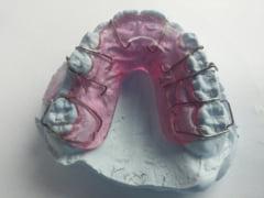 Ce este un aparat dentar?