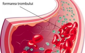 Ce se intampla cand apar cheaguri de sange in sistemul circulator. Primele semne clare ca poti suferi de tromboza