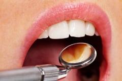 Ce tratamente stomatologice poate urma o femeie insarcinata