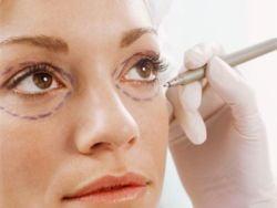 Ce trebuie sa stii despre operatiile estetice