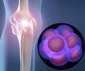 Celulele stem: pretul pietei medicinei regeneratoare
