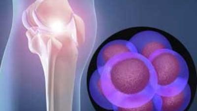 «Artroza se poate trata cu celule stem?» | suceava360.ro