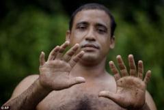 Ciudateniile naturii: omul cu 24 degete (Galerie foto)