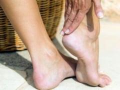 Ciuperca piciorului - Ce spune medicul