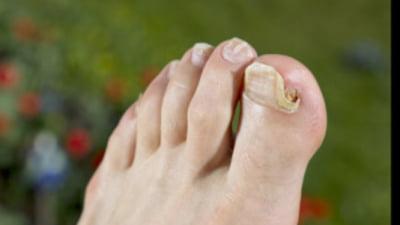 articulațiile degetelor și mâinilor doare ultimele medicamente pentru tratamentul artrozei genunchiului