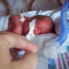 Copiii nascuti prematur, mai predispusi la autism