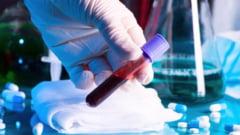 Coronavirus - Numarul persoanelor infectate a ajuns la 906 in Romania - Au aparut 144 de cazuri noi