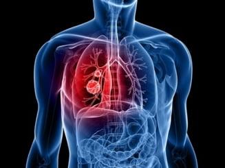 Crioterapia, nou tratament pentru cancerul pulmonar