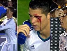 Cristiano Ronaldo, la un pas de o tragedie. Starul portughez, in spital! (Video)