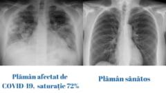 Cum arată plămânul unui tânăr de 32 de ani afectat grav de COVID-19. Comparația cu un plămân sănătos FOTO
