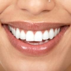 Cum este mai bine sa-ti alegi partenerul sau partenera: dupa dinti