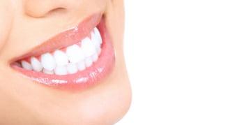 Cum iti albesti dintii acasa, fara dentist