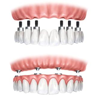 De ce sa alegeti proteza dentara fixa pe implanturi in locul protezei mobile?