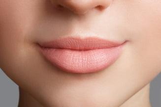 De Ce Sa Alegi Acidul Hialuronic Pentru Augmentarea Buzelor