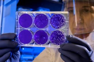 De ce unele persoane dezvolta anticorpi impotriva coronavirusului, iar altele nu? Raspunsul medicilor