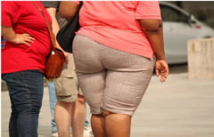 De fapt, ce este obezitatea? O forma de imbatranire prematura, arata cele mai recente studii