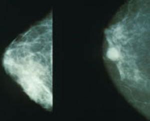 Detectorul de cancer inventat de o romanca, promovat in cadrul PE