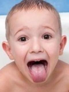 Diagnosticul dupa limba