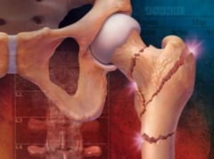 Dietele de genul Atkins predispun la osteoporoza