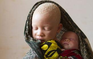 Drama copiilor albinosi din Tanzania: Baieti si fete, vanati la propriu pentru a fi folositi la potiuni