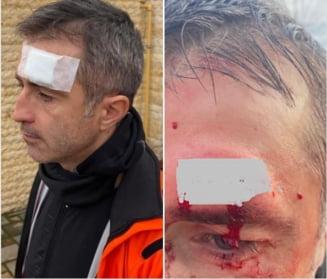 "Europarlamentarul Dragos Benea, accidentat grav, in timp ce se afla pe bicicleta. ""Am avut ghinion si noroc in aceeasi fractiune de secunda!"""